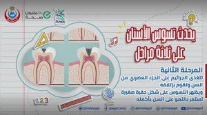 أسباب تسوس الأسنان عند الأطفال وطرق علاجه والوقاية منه